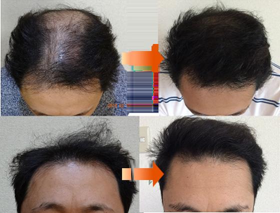 発毛症例集-1